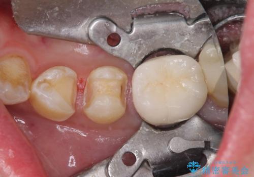 冷たいものがしみる セラミックインレーによるむし歯治療の治療中