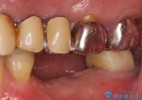 インプラント 失った奥歯の欠損補綴の治療前