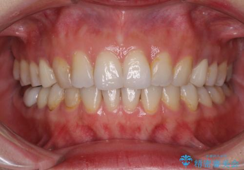 総合歯科治療 矯正治療と失活歯のセラミック補綴治療の症例 治療後