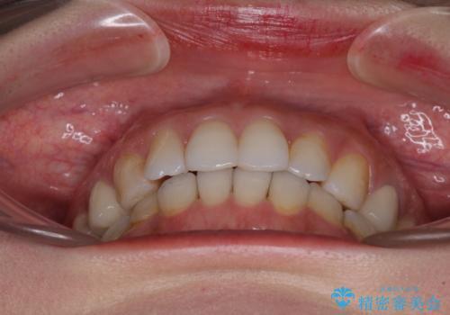 総合歯科治療 矯正治療と失活歯のセラミック補綴治療の治療後