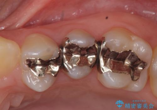 オールセラミッククラウン 銀歯がしみるの治療前