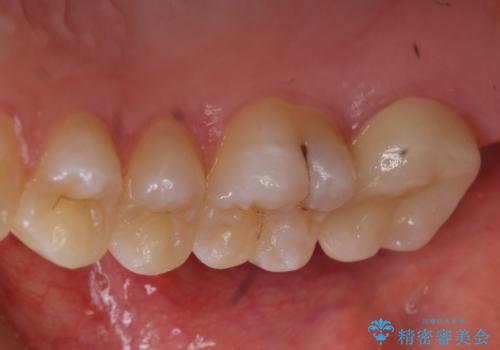 奥歯の虫歯 特殊な形をした歯の治療の治療後