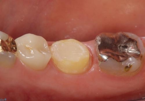 オールセラミッククラウン 違和感のある奥歯の治療の治療中