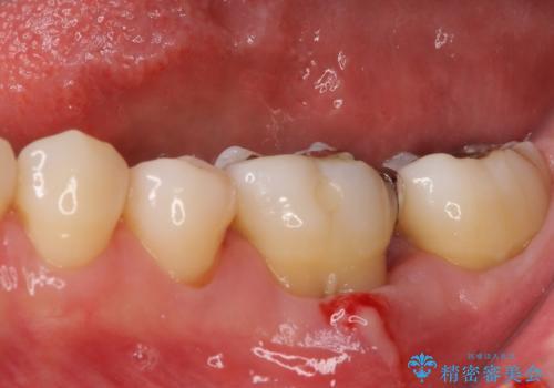 奥歯の虫歯 オールセラミッククラウンによる補綴治療の治療前