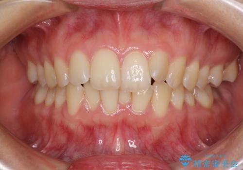 前歯のデコボコを解消 インビザラインによる矯正治療の症例 治療前