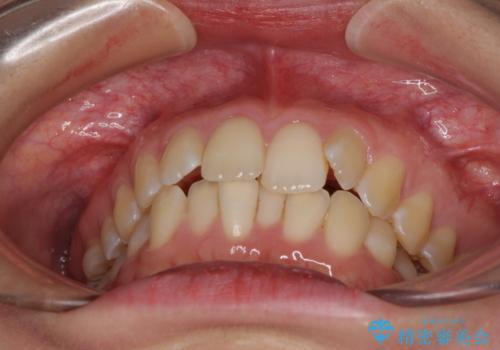 前歯のデコボコを解消 インビザラインによる矯正治療の治療前