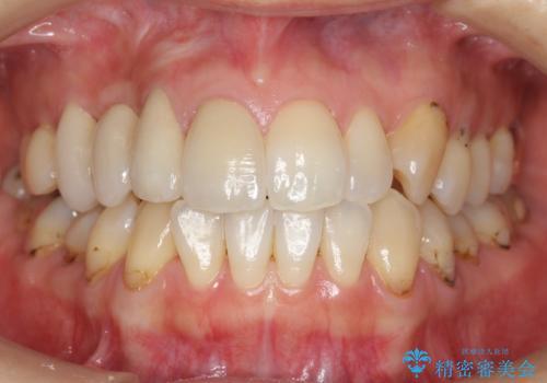 前歯の虫歯 とりあえずつけていた歯がとれたの治療後