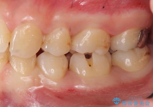 歯と歯の間の虫歯治療 セラミックインレーで治療の治療中