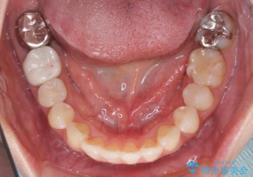 総合歯科治療 矯正治療と失活歯のセラミック補綴治療の治療中