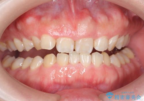 歯の着色をPMTCで、きれいにして口元爽やかに!の治療後