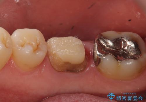 オールセラミッククラウン 歯茎から膿が出る歯の治療の治療中
