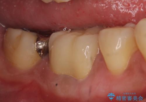 オールセラミッククラウン 歯茎から膿が出る歯の治療の治療後