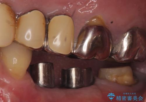 インプラント 失った奥歯の欠損補綴の治療中
