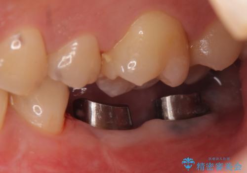 インプラント 失ってしまった奥歯の再建の治療中