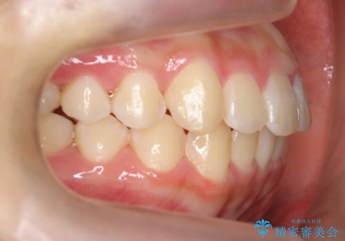 中学生のマウスピース矯正 歯を抜かずにキレイにの治療後