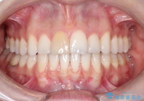インビザラインによる非抜歯での八重歯の矯正 の症例 治療後