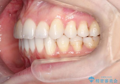 インビザラインによる非抜歯での八重歯の矯正 の治療後