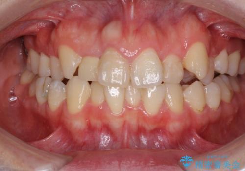狭い上顎骨を拡大 インビザラインによる非抜歯矯正の症例 治療前