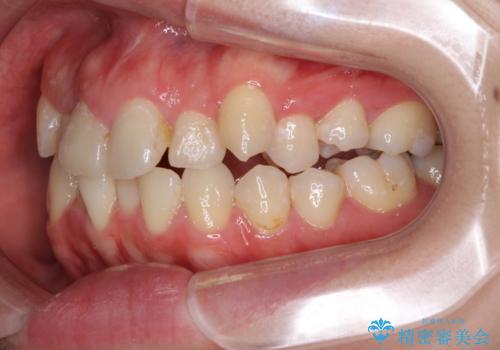 狭い上顎骨を拡大 インビザラインによる非抜歯矯正の治療前