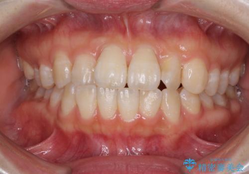気になる前歯のデコボコ インビザラインによる矯正治療の症例 治療前