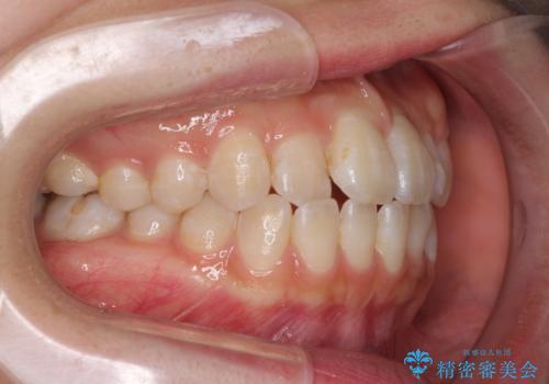 気になる前歯のデコボコ インビザラインによる矯正治療の治療前
