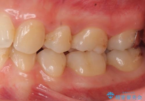 歯と歯の間の虫歯治療 セラミックインレーで治療の治療後