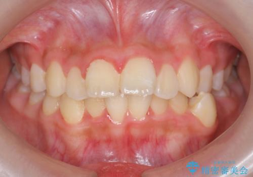 中学生のマウスピース矯正 歯を抜かずにキレイにの症例 治療前