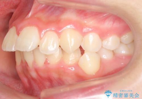 中学生のマウスピース矯正 歯を抜かずにキレイにの治療前