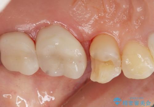 銀歯がしみる PGA(ゴールド)インレーへ 40代女性の治療中