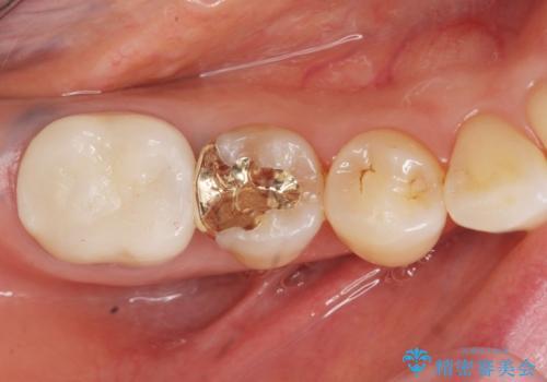 銀歯がしみる PGA(ゴールド)インレーへ 40代女性の治療後