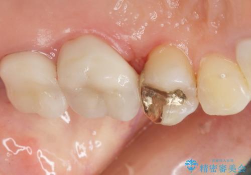 銀歯がしみる PGA(ゴールド)インレーへ 40代女性の症例 治療後
