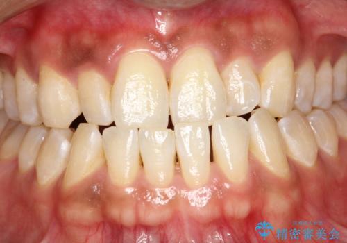 PMTCで歯周病予防の治療前