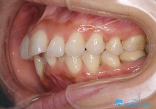 ワイヤーによる抜歯矯正でガタガタと深いかみ合わせの改善の治療前
