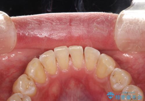 PMTCで歯周病予防の治療後
