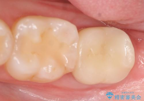 歯冠延長術 他院にてクラウンが入れられないと言われた歯の治療の治療後