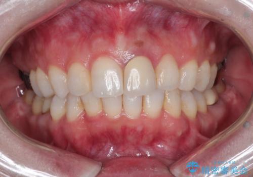 インビザラインによる非抜歯矯正 ガタガタな歯並びを整った歯並びへの症例 治療後
