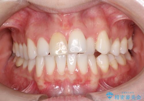 インビザラインによる非抜歯での八重歯の矯正 の症例 治療前