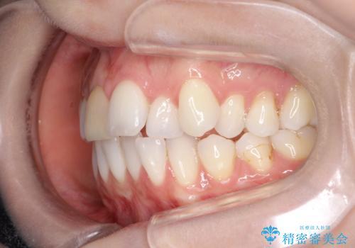 インビザラインによる非抜歯での八重歯の矯正 の治療前