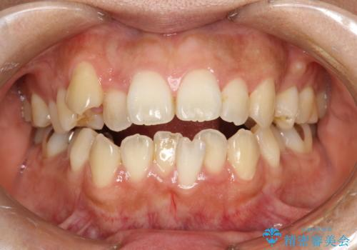 歯科矯正前のPMTCの治療前