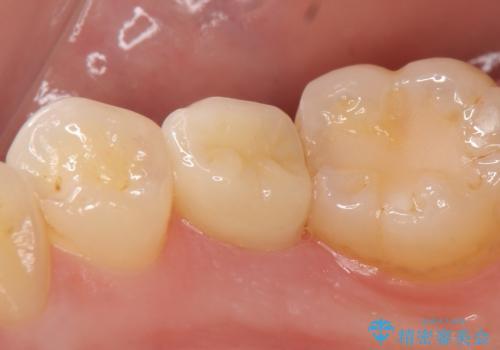 オールセラミッククラウン ズキズキ痛む虫歯の治療の治療後