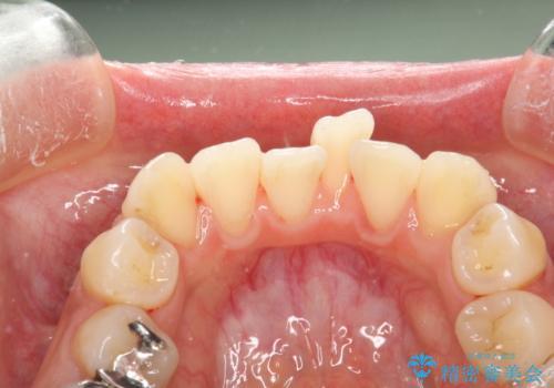 歯科矯正前のPMTCの治療後