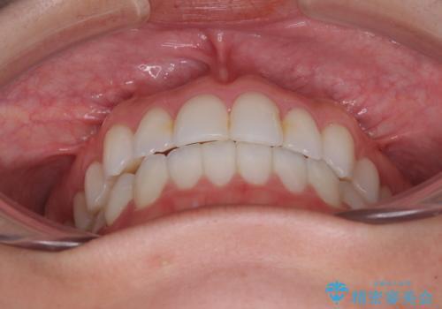 前歯のクロスバイトを治したい インビザラインによる矯正治療の治療後