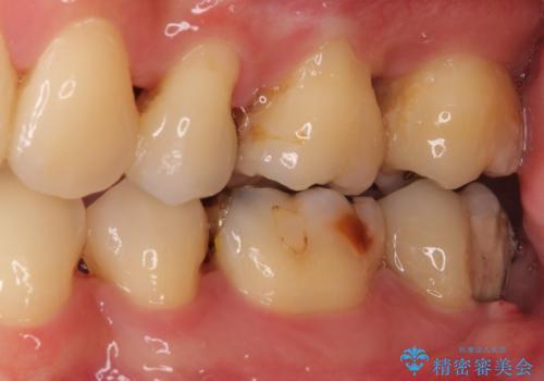 歯周病で抜歯に 奥歯のインプラント治療の治療前
