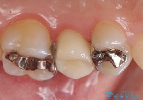 オールセラミッククラウン 銀歯がしみるの治療後
