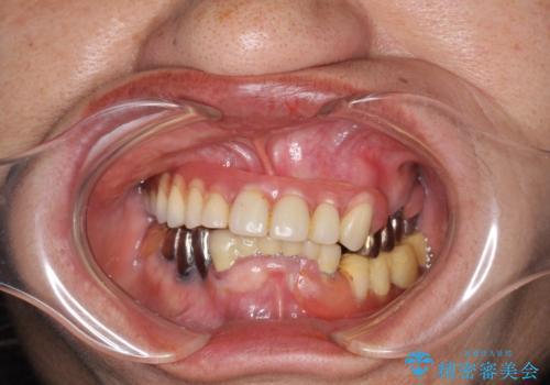 インプラントオーバーデンチャー 咬合平面の改善の治療前