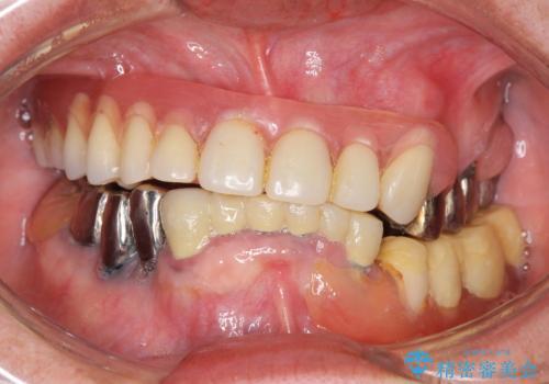 インプラントオーバーデンチャー 咬合平面の改善の症例 治療前