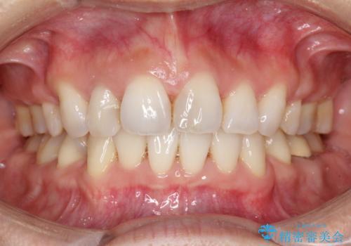 ワイヤーによる抜歯矯正でガタガタと深いかみ合わせの改善の治療後