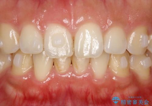 インビザライン中に歯の着色落としクリーニング PMTCの治療前