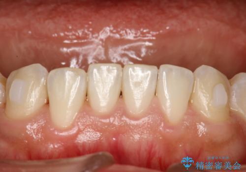 インビザライン中に歯の着色落としクリーニング PMTCの治療後