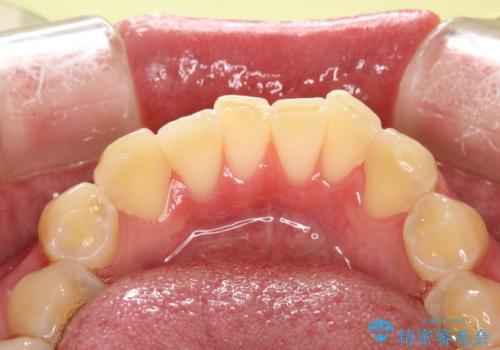 定期的なメンテナンスで歯磨きチェックの治療前